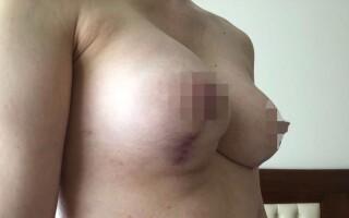 У звёздного хирурга из Москвы отсудили два млн рублей за изуродованную грудь