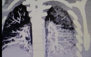 Врачи показали, во что превратились лёгкие студента через два года курения вейпа